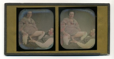conservation done, tinted, stereoscopic view