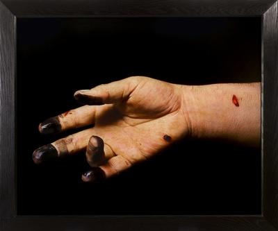 Knifed to death (I et II).de la série The morgue