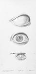 Fig. 1. Hydrophtalmie / Fig. 2. Oeil d'un volume excessif / Fig. 3. Cicatrice sur la cornée depuis l'âge de six mois