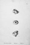 Fig. 1. Protubérance de la cornée, suite d'une brûlure / Fig. 2. Oeil à demi atrophié / Fig. 3. Cornée qui, malgré une saillie et une largeur considérables, a conservé sa transparence