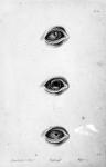 Fig. 1. Abcès dans l'épaisseur de la cornée. Onyx. Déchirure à l'iris / Fig. 2. Chémosis avec hypopion / Fig. 3. Deux portions de cercle à la partie inférieure de la cornée