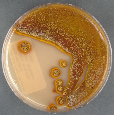 Streptomyces seymenliensis Tatar and Sahin 2015