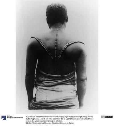Rückansicht einer Frau mit Ziernarben, Mkondja [Originalbeschreibung Katalog: Mwera Mutter, Pygmäen, Kongo]
