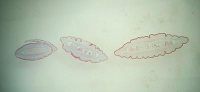 Burbot paraziták Burbot paraziták