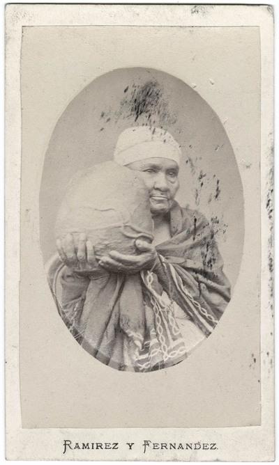 Frau mit Kropf aus der Gegend von Popayán [Kolumbien 1868]