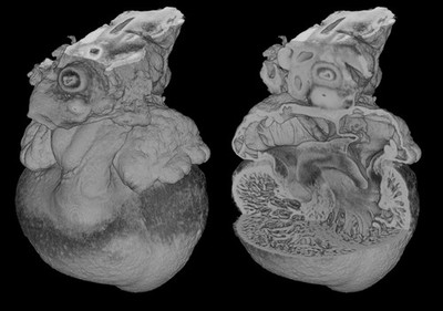 3D reconstruction of chick heart