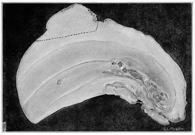 Median Sagittal section of whales tooth