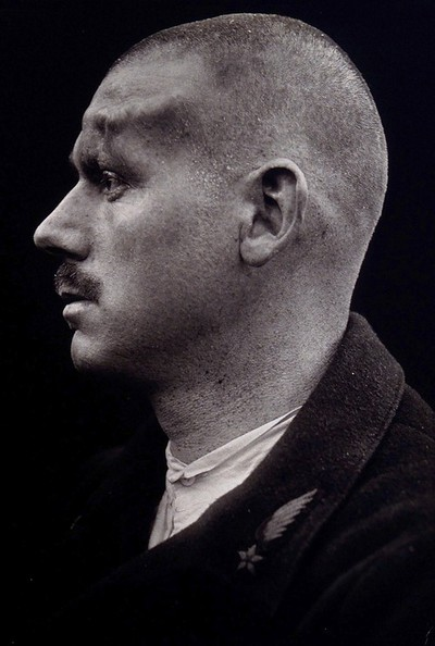 Cranio-facial injury: a French soldier with an injury to his forehead; in profile: before plastic surgery. Photograph, 1917.