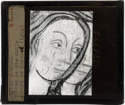 Anoniem. Schrijn van de H. Odilia Lange zijde met martelscenes, detail: Hoofd, bovenaan, links