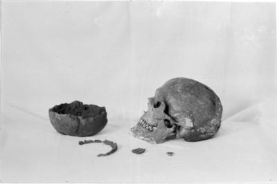 Ett kranium från grav nr 2. som har ett par deformationer efter slag eller trepanation, och gravgåvor: Bronsölja, hartstätning, lerkärl, hästtand. Utgrävning och foto av Hilding Svensson.